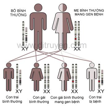 Bệnh Loạn dưỡng cơ Duchenne liên kết NST giới X (DMD)